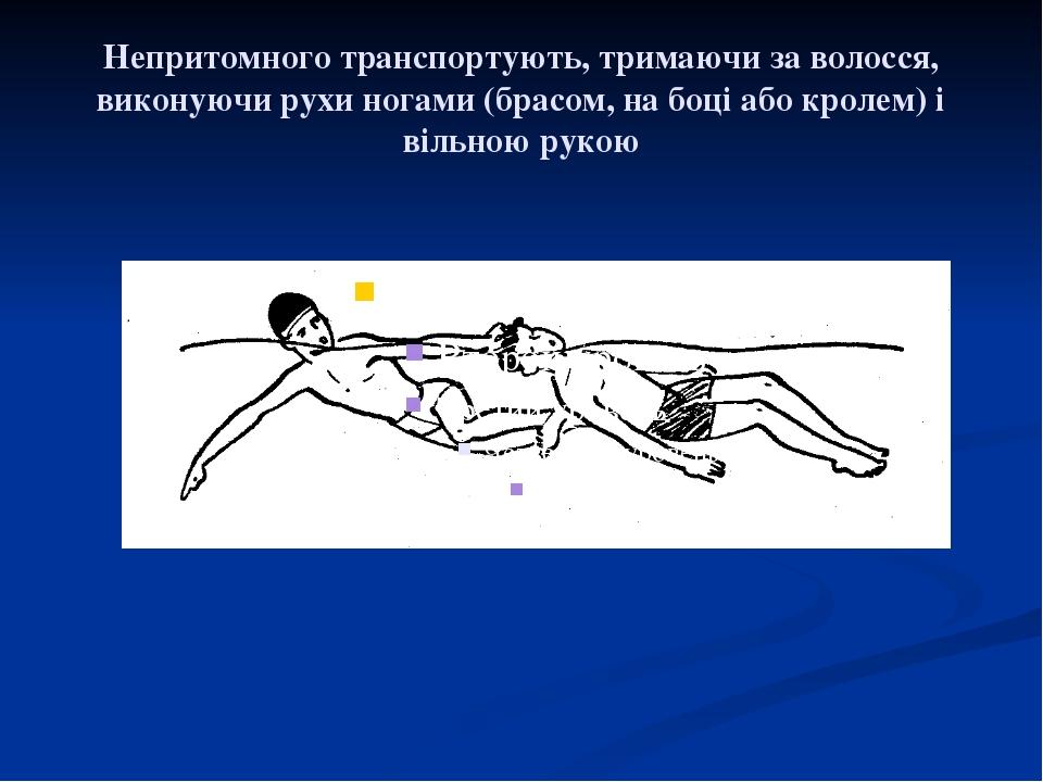 Непритомного транспортують, тримаючи за волосся, виконуючи рухи ногами (брасо...