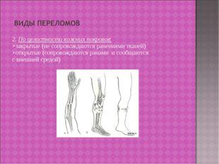 2. По целостности кожных покровов: закрытые (не сопровождаются ранениями ткан