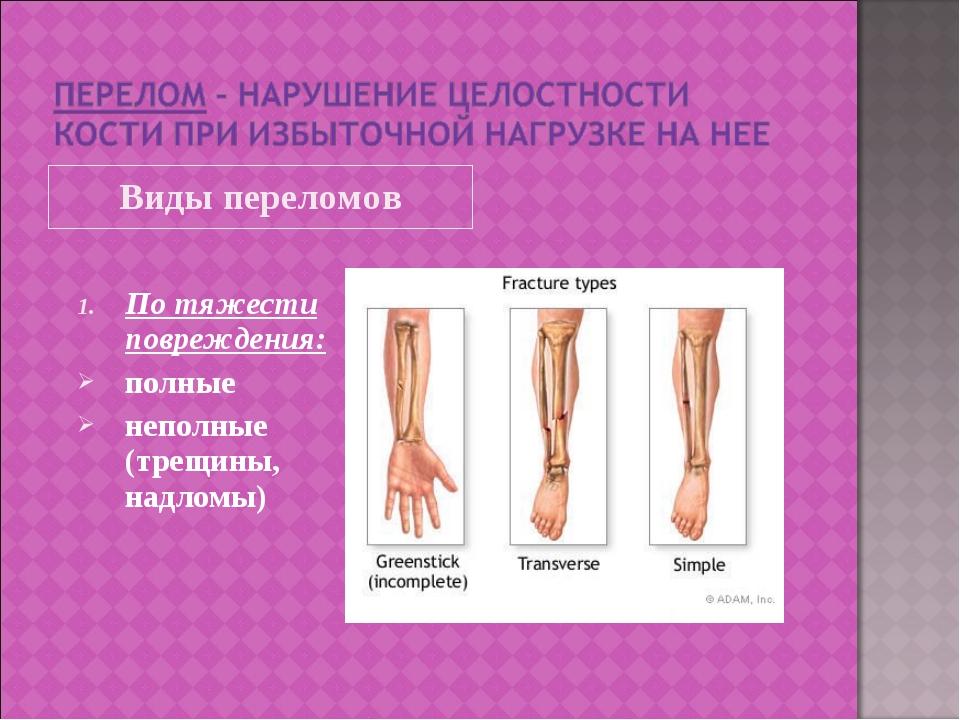 Виды переломов По тяжести повреждения: полные неполные (трещины, надломы)