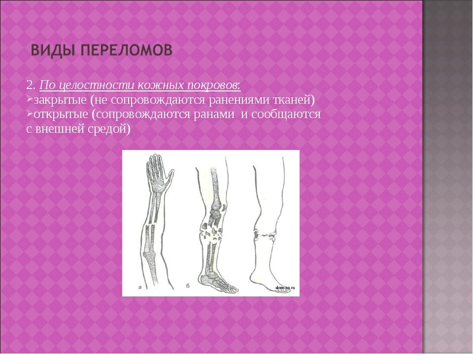 2. По целостности кожных покровов: закрытые (не сопровождаются ранениями ткан...