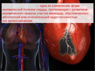 Инфа́рктмиока́рда — одна из клинических форм ишемической болезнисердца, пр
