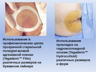 Использование в профилактических целях прозрачной стерильной полиуретановой а