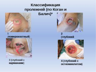 1 (поверхностный) 2 (глубокий 3 (глубокий с карманами) 4 (глубокий с остеомие