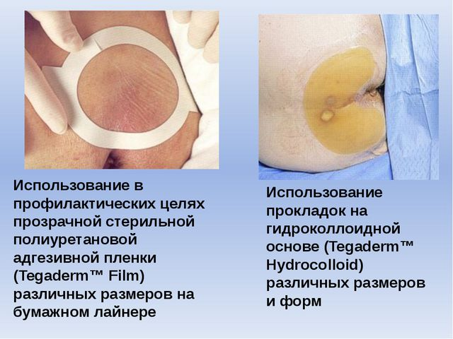 Использование в профилактических целях прозрачной стерильной полиуретановой а...