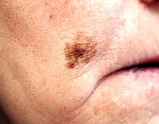 меланоз дюбрея1
