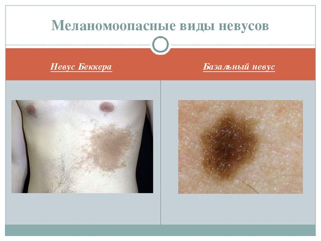 Невус Беккера Базальный невус Меланомоопасные виды невусов