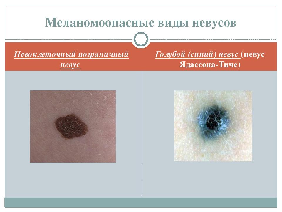 Невоклеточный пограничный невус Голубой (синий) невус (невус Ядассона-Тиче) М...