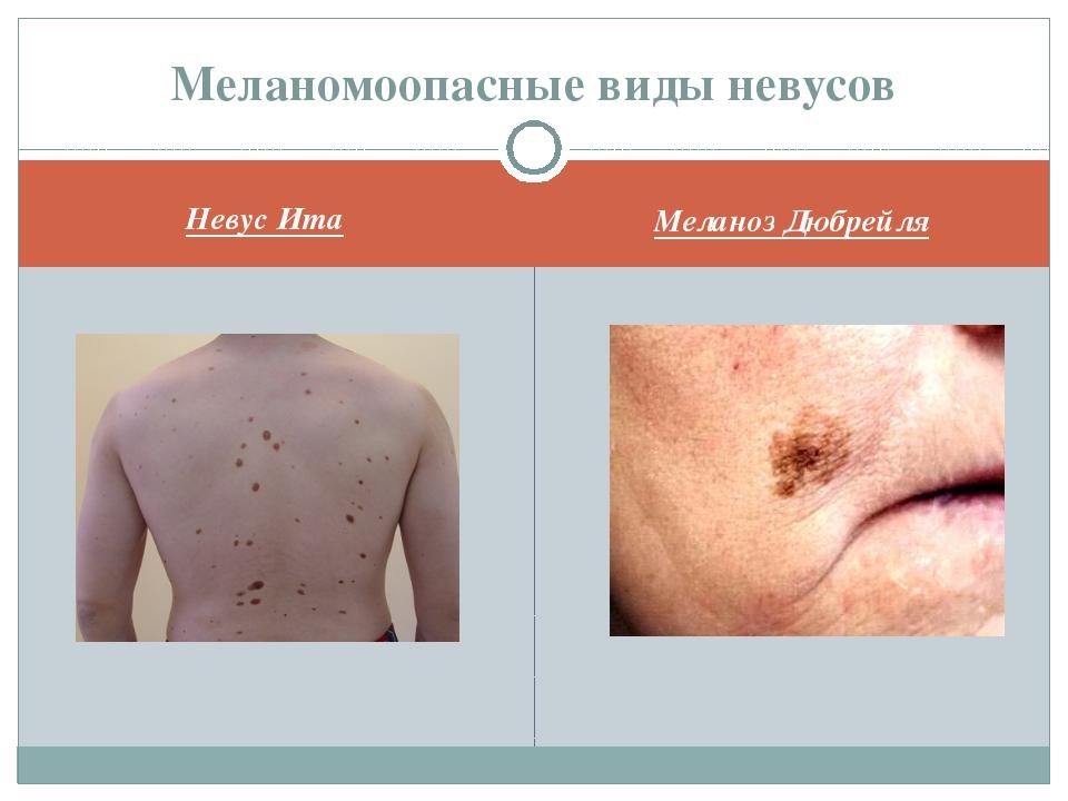 Невус Ита Меланоз Дюбрейля Меланомоопасные виды невусов