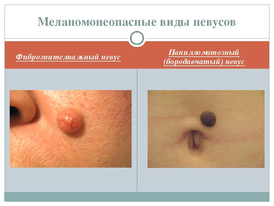 Фиброэпителиальный невус Папилломатозный (бородавчатый) невус Меланомонеопасн...