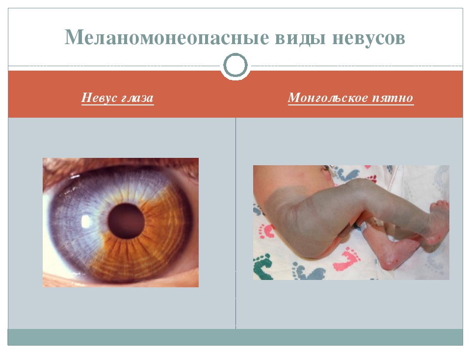 Невус глаза Монгольское пятно Меланомонеопасные виды невусов