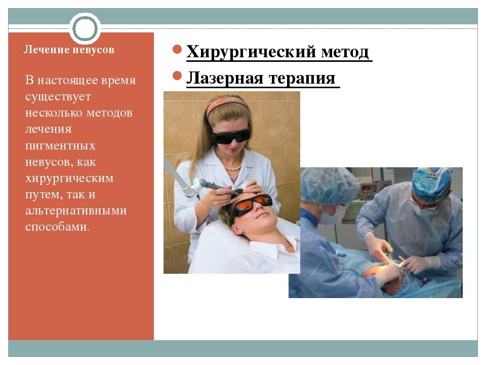 Лечение невусов В настоящее время существует несколько методов лечения пигме...