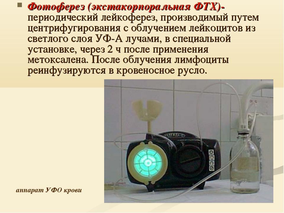 Фотоферез (экстакорпоральная ФТХ)- периодический лейкоферез, производимый пут...
