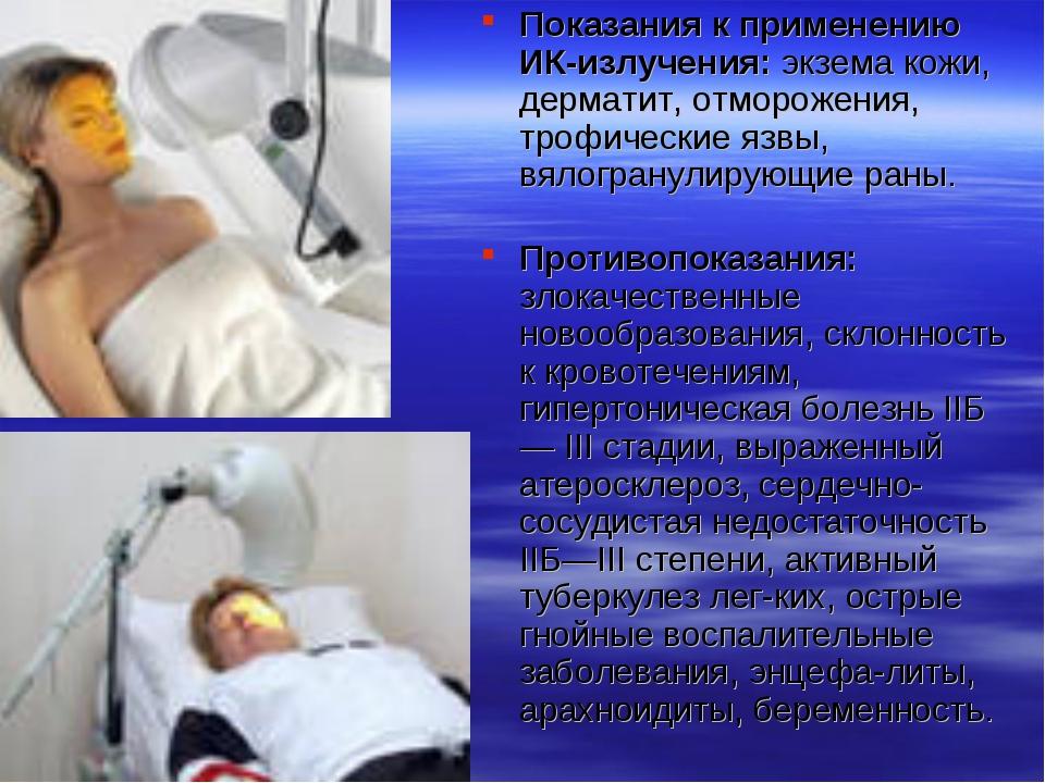 Показания к применению ИК-излучения: экзема кожи, дерматит, отморожения, троф...