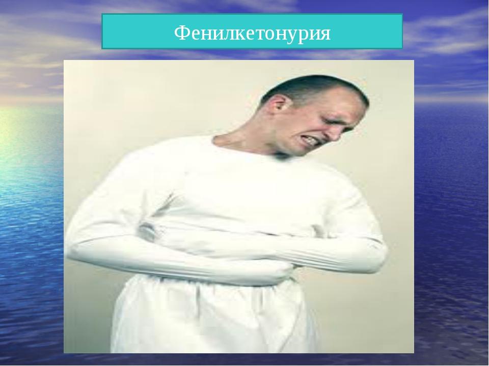 Фенилкетонурия