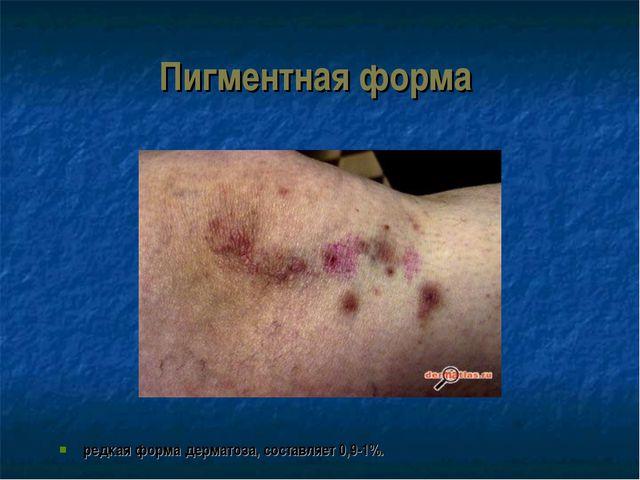 Пигментная форма редкая форма дерматоза, составляет 0,9-1%.
