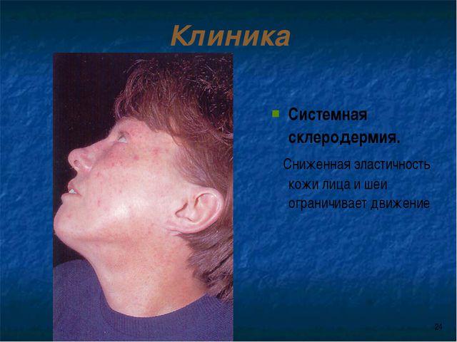 * Клиника Системная склеродермия. Сниженная эластичность кожи лица и шеи огра...