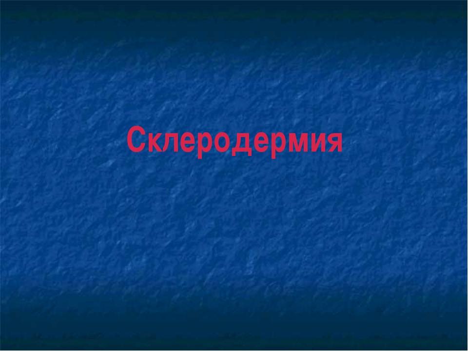Склеродермия