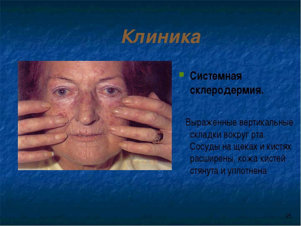 * Клиника Системная склеродермия. Выраженные вертикальные складки вокруг рта....