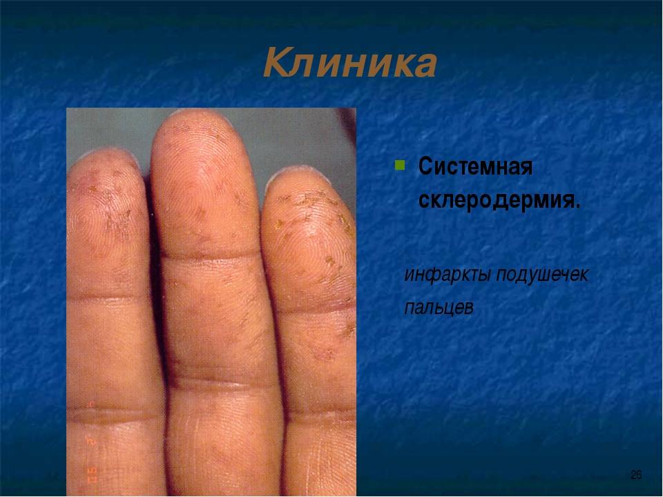 * Клиника Системная склеродермия. инфаркты подушечек пальцев