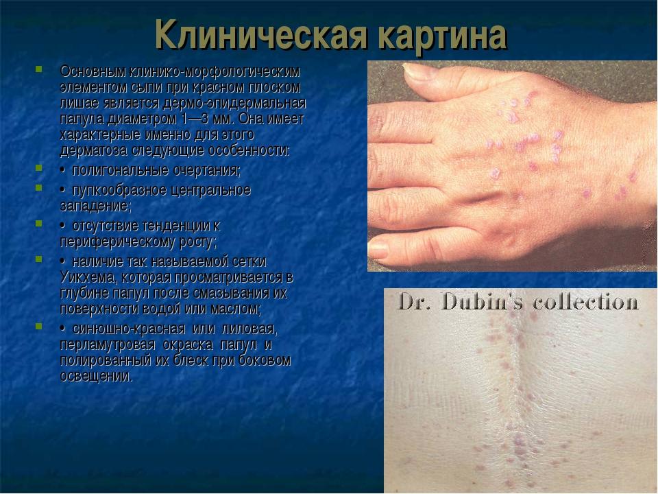 Клиническая картина Основным клинико-морфологическим элементом сыпи при красн...