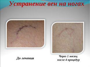 Устранение вен на ногах До лечения