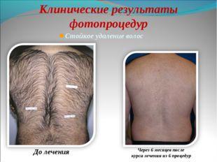 Стойкое удаление волос До лечения Клинические результаты фотопроцедур