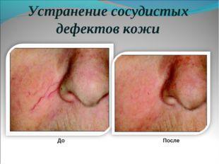 Устранение сосудистых дефектов кожи