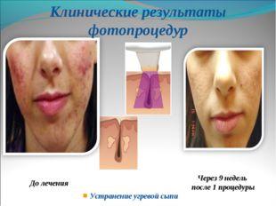 Устранение угревой сыпи До лечения Клинические результаты фотопроцедур