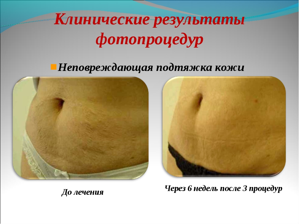 До лечения Неповреждающая подтяжка кожи Клинические результаты фотопроцедур