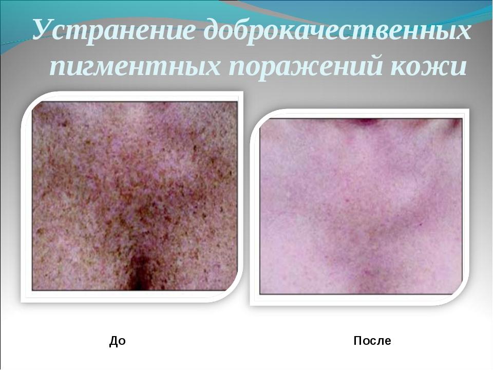 Устранение доброкачественных пигментных поражений кожи