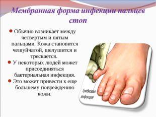 Обычно возникает между четвертым и пятым пальцами. Кожа становится чешуйчатой