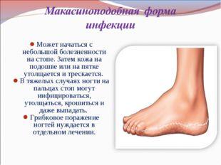 Может начаться с небольшой болезненности на стопе. Затем кожа на подошве или