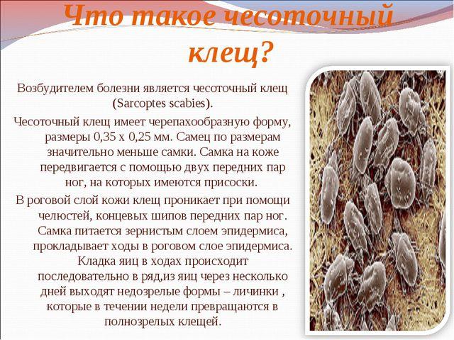Что такое чесоточный клещ? Возбудителем болезни является чесоточный клещ (Sar...