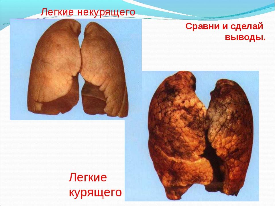 Сравни и сделай выводы. Легкие некурящего Легкие курящего