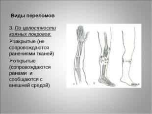 Виды переломов 3. По целостности кожных покровов: закрытые (не сопровождаются