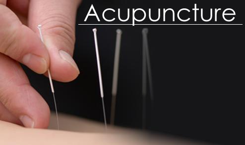 http://alternative-medicine.ru/images/acupuncture_71202730_std.png
