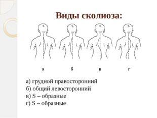 Виды сколиоза: а) грудной правосторонний б) общий левосторонний в) S – образн
