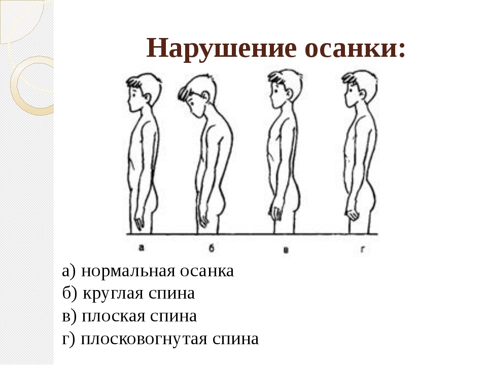 Нарушение осанки: а) нормальная осанка б) круглая спина в) плоская спина г) п...