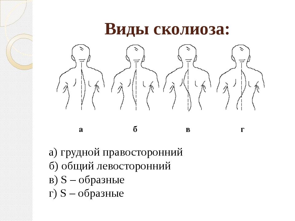 Виды сколиоза: а) грудной правосторонний б) общий левосторонний в) S – образн...