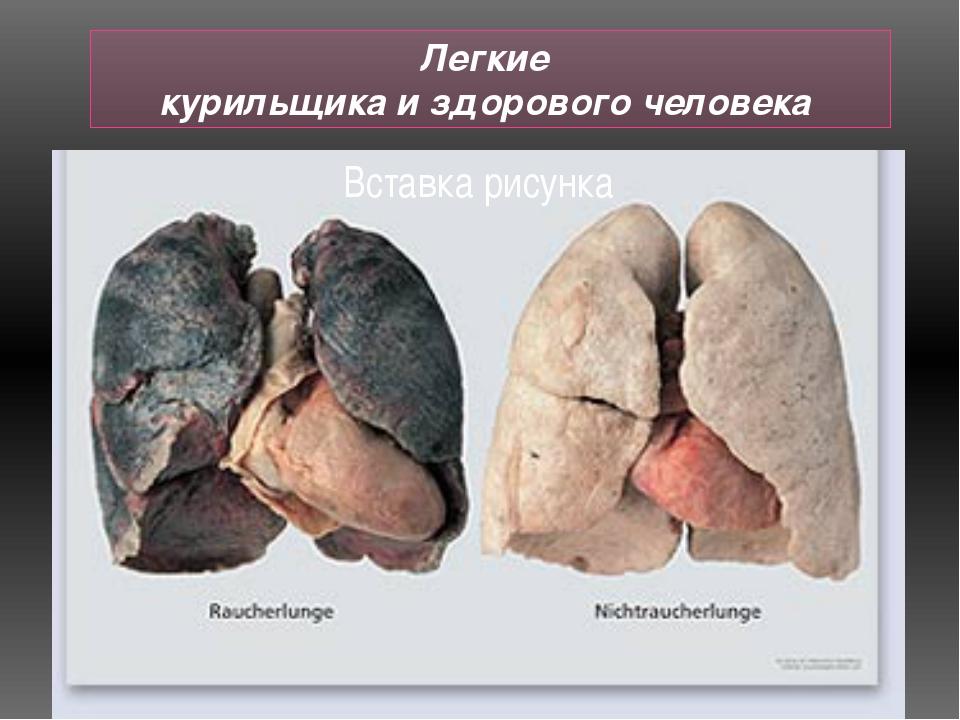 Легкие курильщика и здорового человека