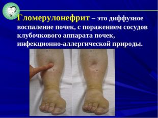 Гломерулонефрит – это диффузное воспаление почек, с поражением сосудов клубоч