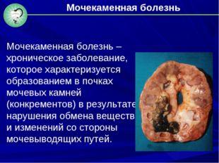 : Мочекаменная болезнь – хроническое заболевание, которое характеризуется обр