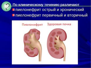 пиелонефрит острый и хронический пиелонефрит первичный и вторичный По клиниче