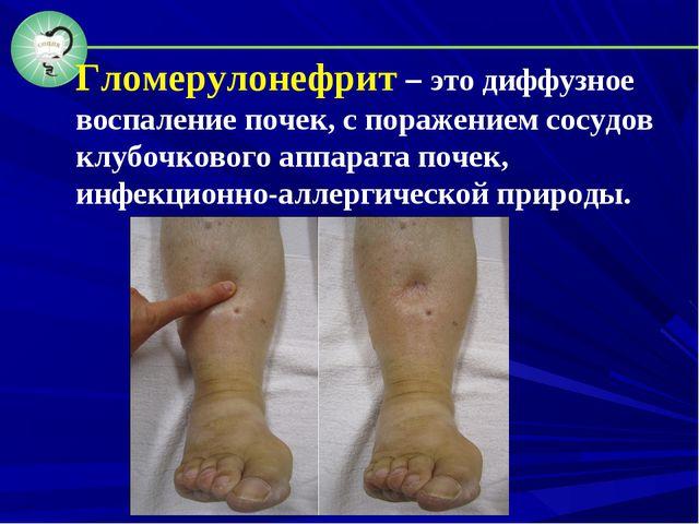 Гломерулонефрит – это диффузное воспаление почек, с поражением сосудов клубоч...