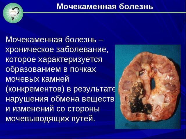 : Мочекаменная болезнь – хроническое заболевание, которое характеризуется обр...