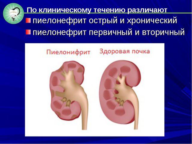 пиелонефрит острый и хронический пиелонефрит первичный и вторичный По клиниче...