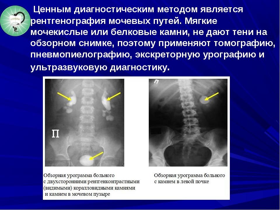 Ценным диагностическим методом является рентгенография мочевых путей. Мягкие...
