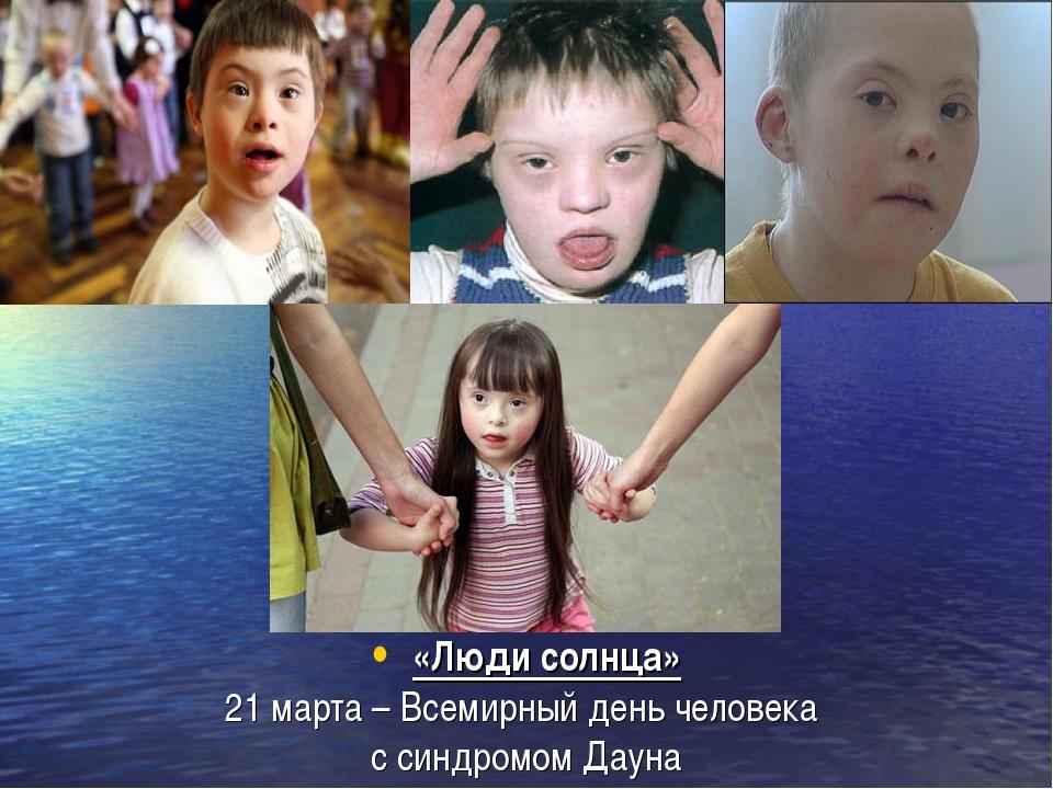 «Люди солнца» 21 марта – Всемирный день человека  с синдромом Дауна