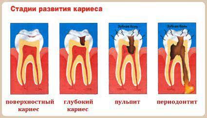 http://cs625830.vk.me/v625830933/4b9e3/JUAghv-Vqso.jpg