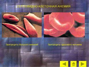 СЕРПОВИДНО-КЛЕТОЧНАЯ АНЕМИЯ Эритроциты здорового человека Эритроциты больного